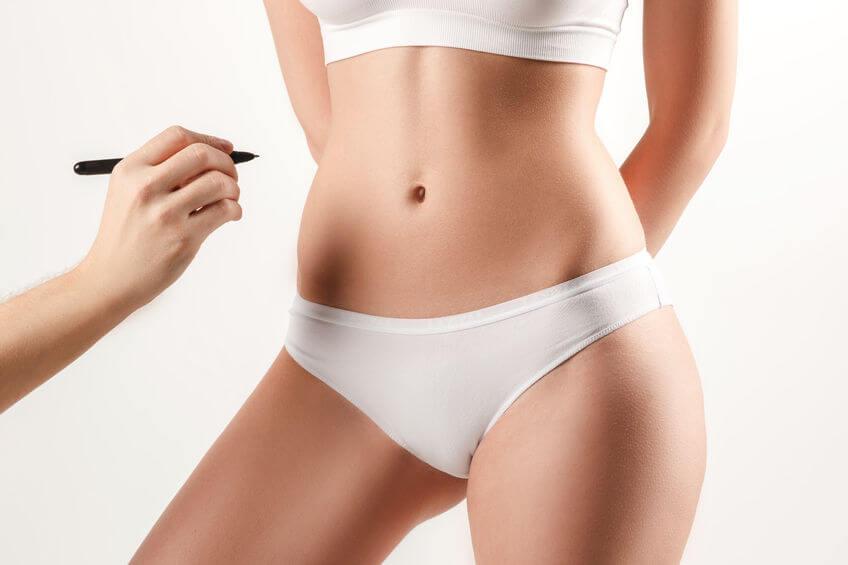 mini-addominoplastica - Dr. Urso