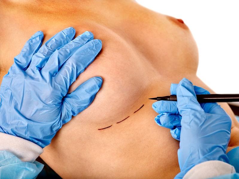 Chirurgia del seno Ozzano dell'Emilia- Dr. Urso